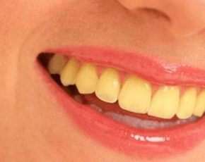 What Is the Cause Of Yellow Teeth? And How to Make them White Again