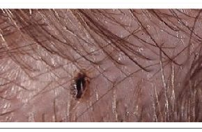 Best Way to Get Rid of Head Lice Using Home Remedies