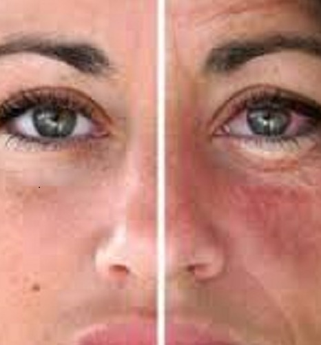 effects of alcohol on skin
