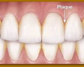 What Causes Plaque Buildup on Teeth?
