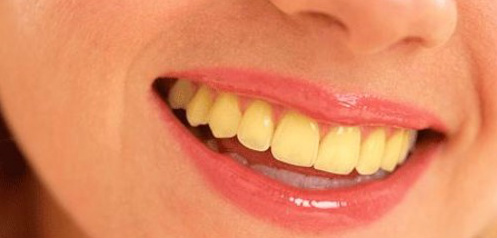 What Is the Cause Of Yellow Teeth